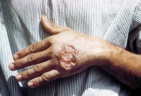 Cutaneous leishmaniasis or skin ulcer due to leishmaniasis on the hand of Central American adult. Source Centers for Disease Control and Prevention, credit Dr. D.S. Martin