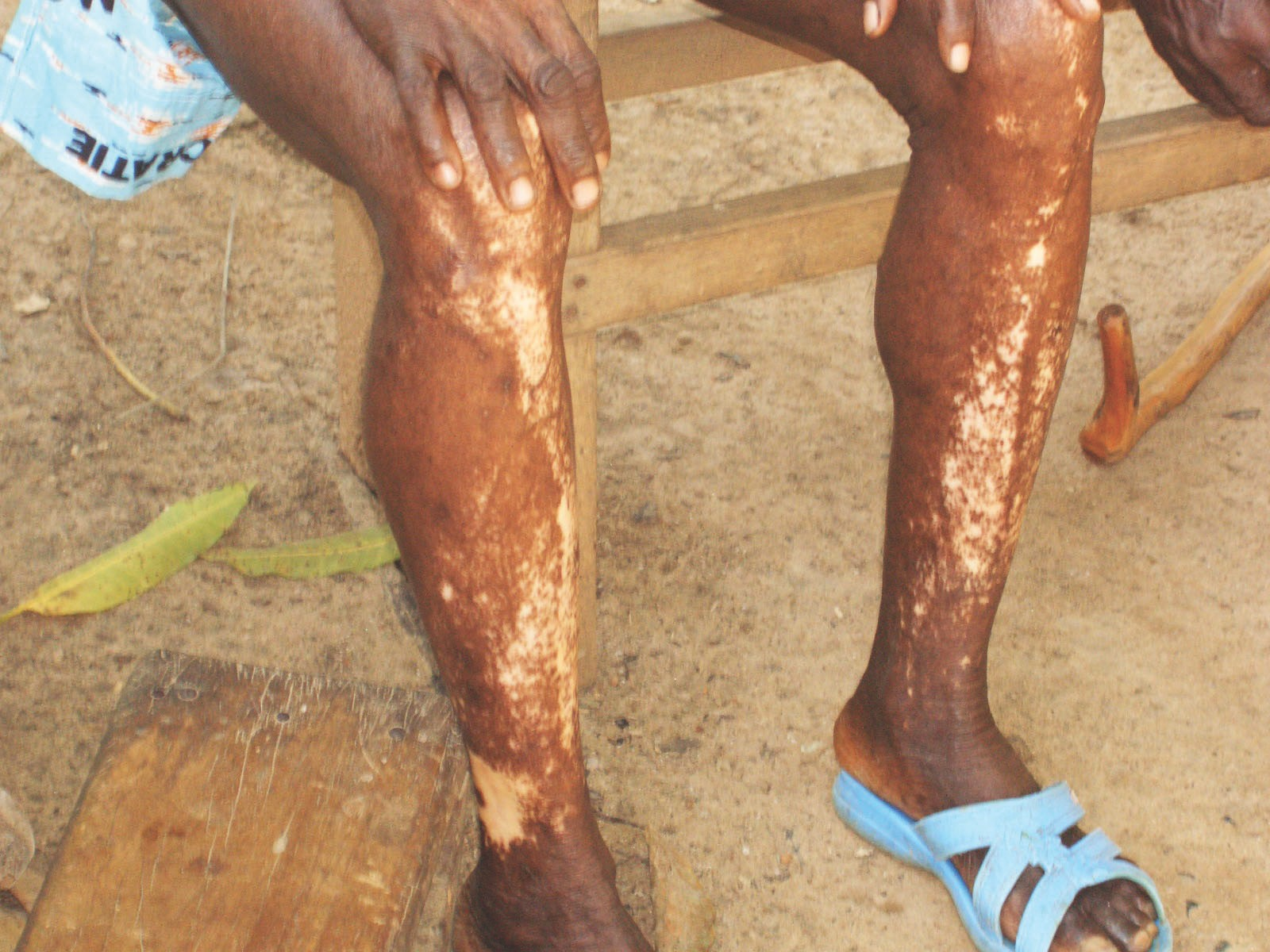 River Blindness A Neglected Disease Transmitted By